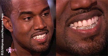 Kanye West replaces teeth with diamonds « Celebrity Gossip and ...