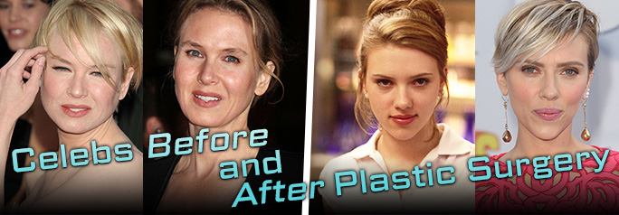 It seems like everyone in Hollywood has had plastic surgery at one point or another, so Tribute asked Plastic and Reconstructive Surgeon Dr. Martin Jugenburg from the Toronto Cosmetic Surgery Institute to tell us which celebrities he believes have had procedures. Click through to see the before and after photos of the stars and read […]