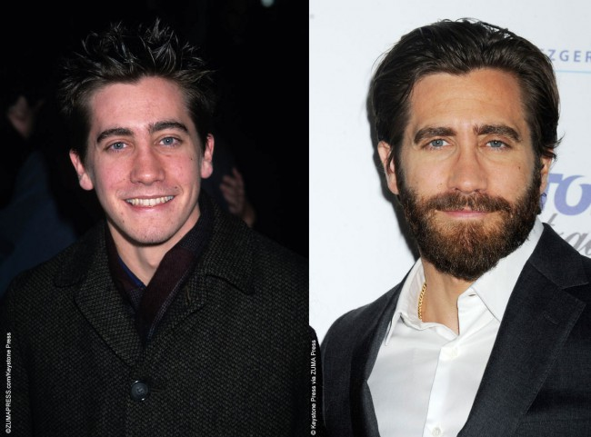 Jake Gyllenhaal has been in the limelight from a young age and when comparing photos of him from when he was a teen to now, he appears to have had some cosmetic surgery to make minor adjustments to his appearance. For one, Jake appears to have undergone rhinoplasty to reduce the bridge and narrow the […]