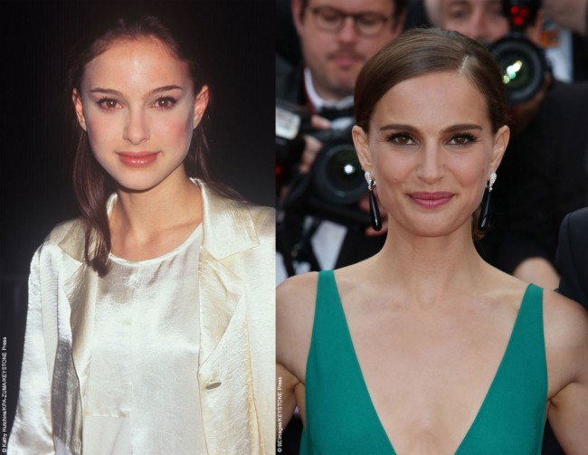 Natalie Portman has been a natural beauty since setting foot on the Hollywood scene at a very young age. While always a natural beauty, it does appear as though she may have undergone rhinoplasty to make minor changes to the tip of her nose as it appears slightly narrower than in her younger years. For […]